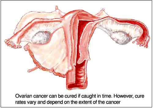 Ovarian Cancer Alternative Treatment Cancer Free Now
